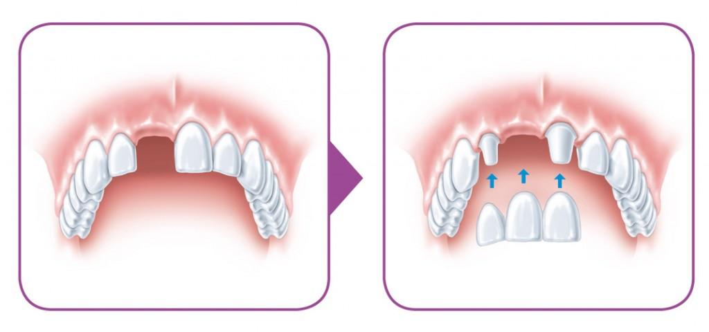 SIROWA_zobarstniecibas klinika_zobu implanti_protezeshana-01