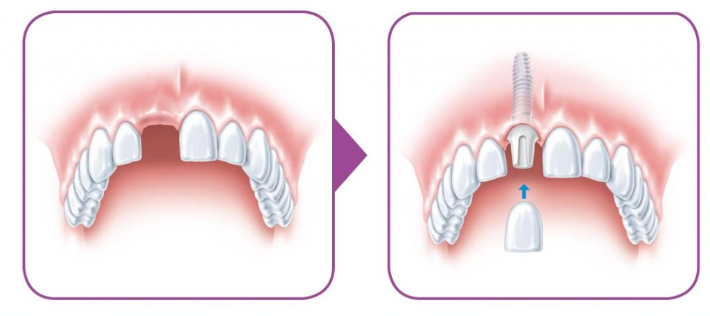 SIROWA_zobarstniecibas klinika_zobu implanti_protezeshana-02