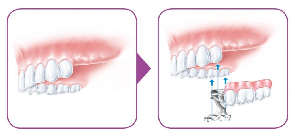 SIROWA_zobarstniecibas klinika_zobu implanti_protezeshana-03
