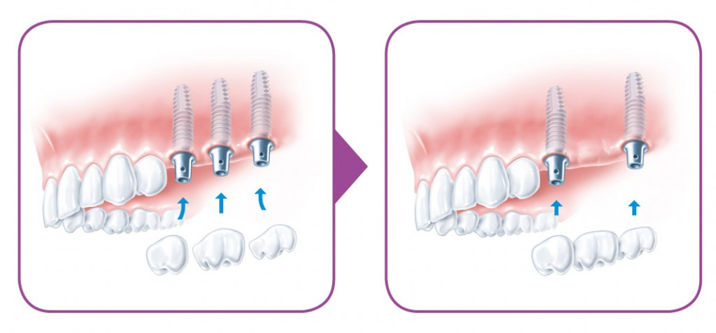 SIROWA_zobarstniecibas klinika_zobu implanti_protezeshana-04