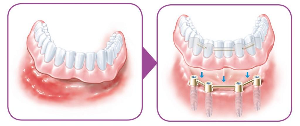 SIROWA_zobarstniecibas klinika_zobu implanti_protezeshana-05