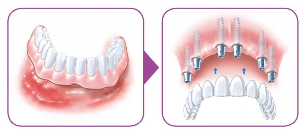 SIROWA_zobarstniecibas klinika_zobu implanti_protezeshana-06