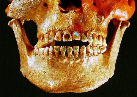 Zobu implantu vēsture meklējama jau Maiju civilizācijas laikā