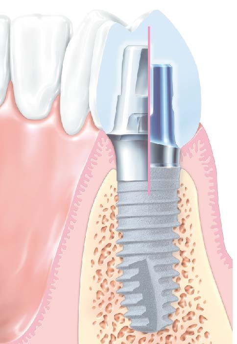 zobu anatomija-04